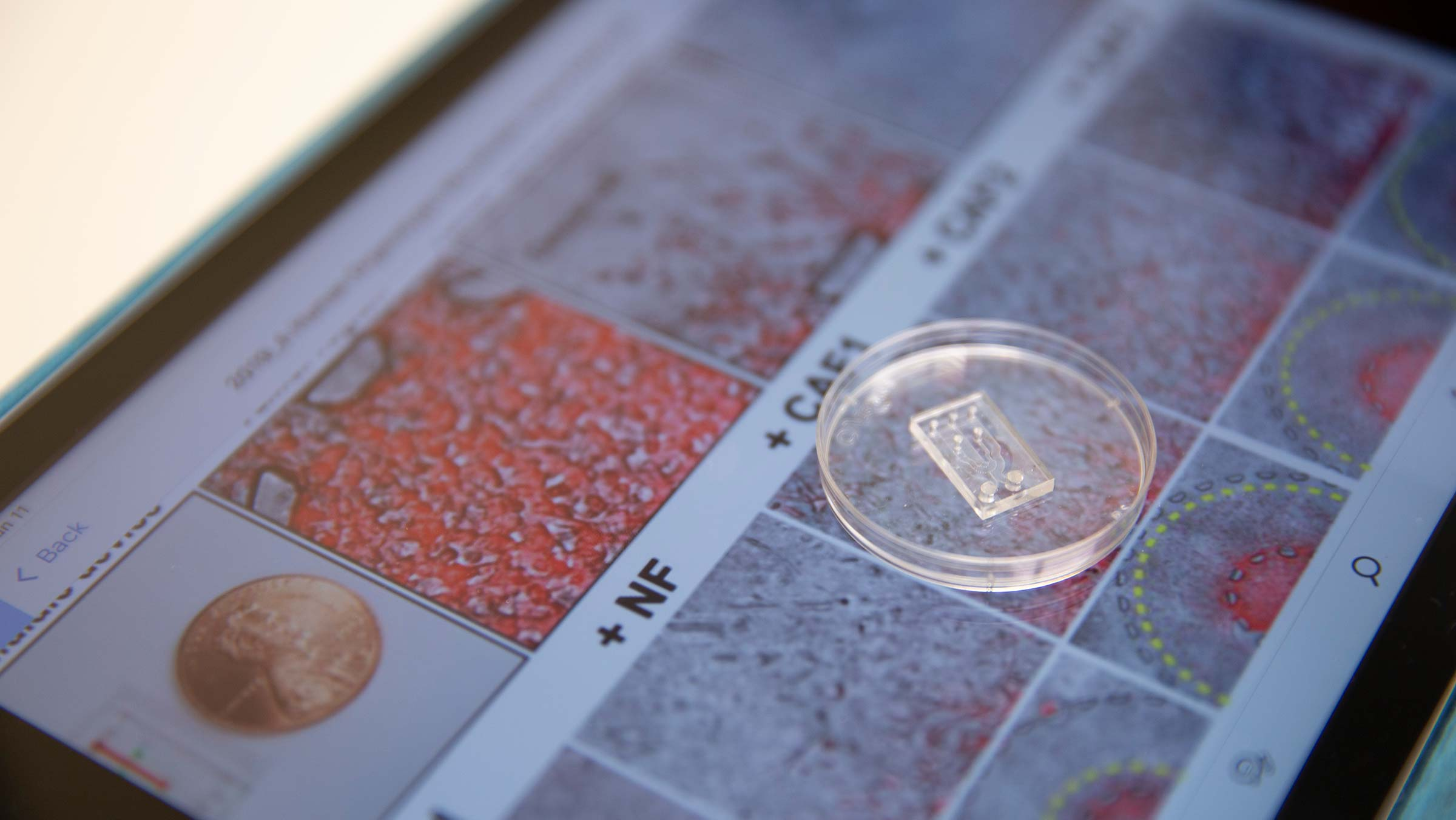 A microfluidic chip, which looks like a clear plastic microchip, sits on top of images of cancer cells and fibroblast cells